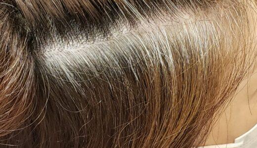 白髪が気にならなくなる方法ってあるの?
